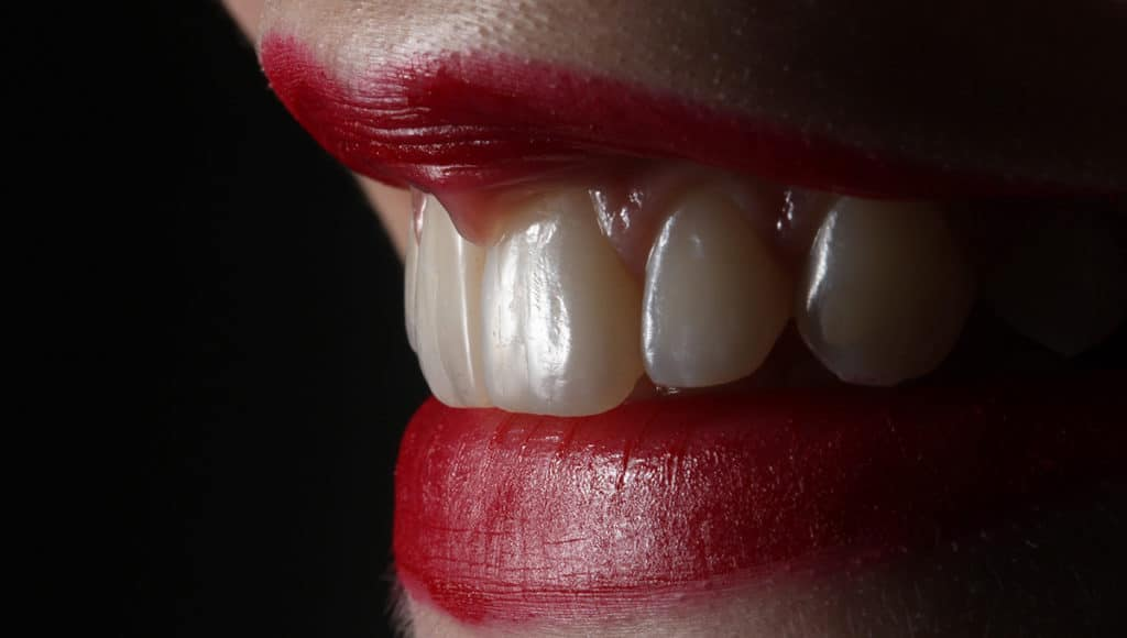Aristotle didn't count teeth